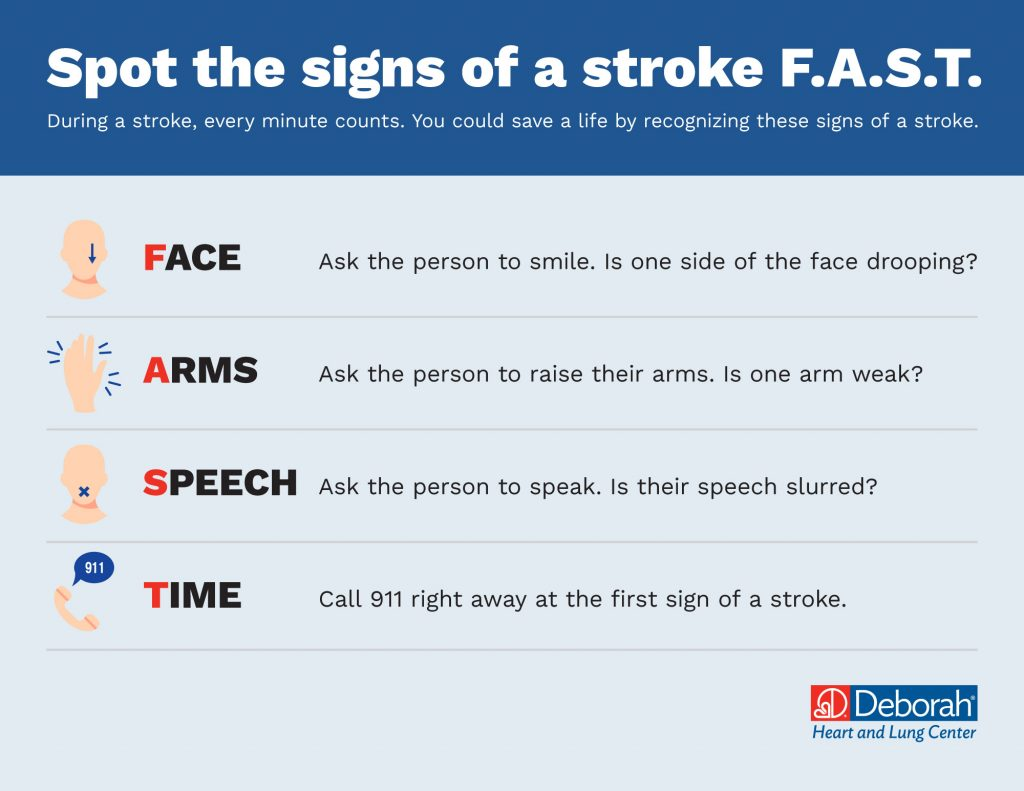 Graphic showing the signs of a stroke using the F.A.C.E. acronym.