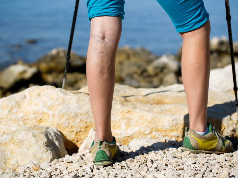 Woman with varicose veins on a leg walking using trekking poles
